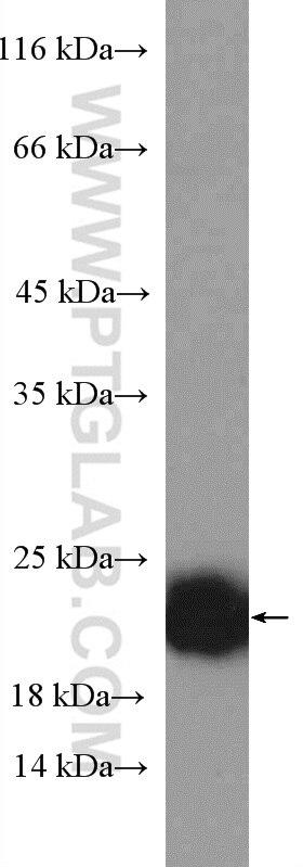 P21 Polyclonal antibody