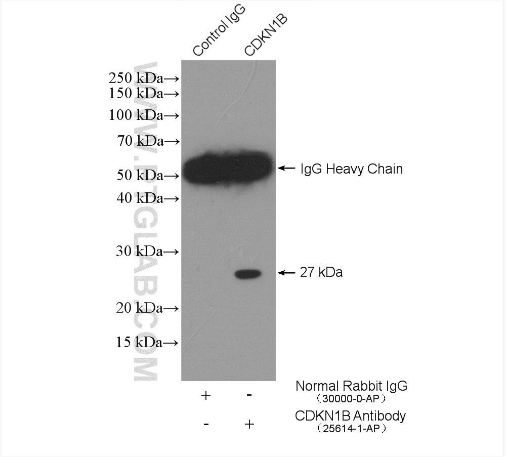 IP experiment of NIH/3T3 using 25614-1-AP