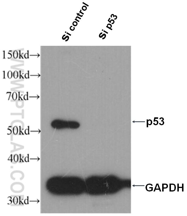 P53 Monoclonal antibody