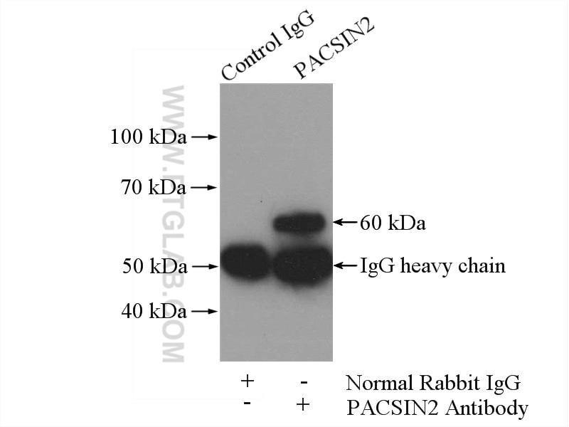 IP experiment of NIH/3T3 using 10518-2-AP