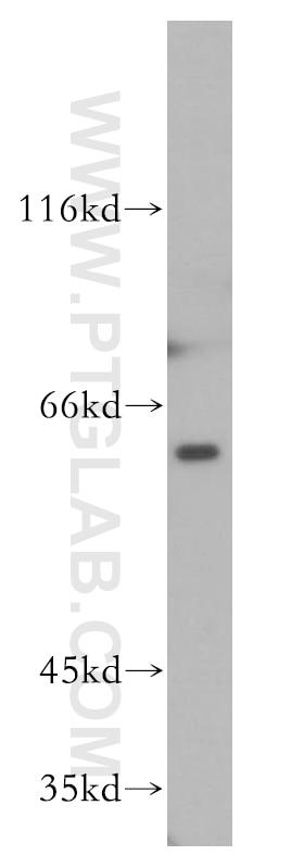 WB analysis of K-562 using 51137-1-AP