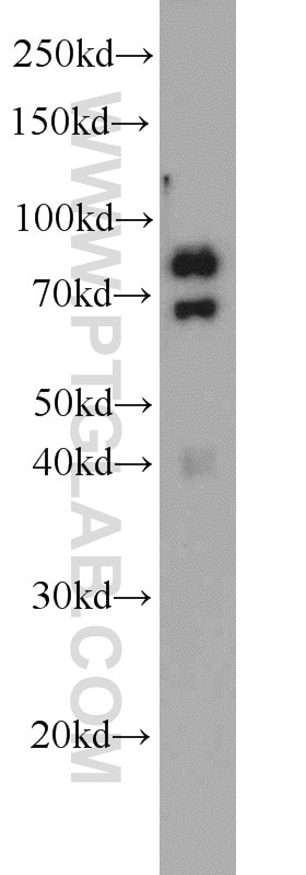 WB analysis of mouse skeletal muscle using 55310-1-AP