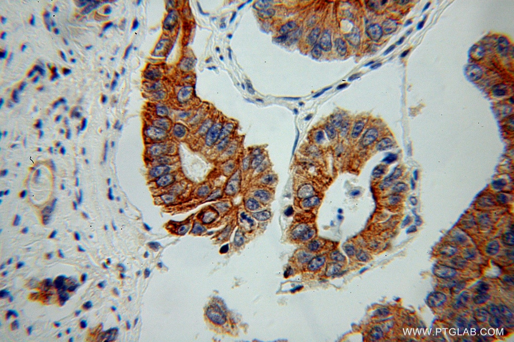 IHC staining of human colon cancer using 11085-1-AP