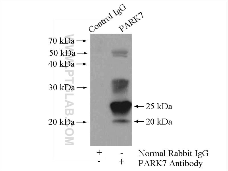 IP experiment of HeLa using 11681-1-AP