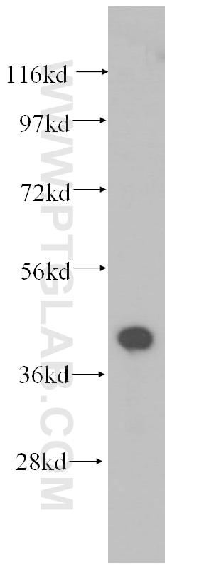 WB analysis of human liver using 11202-1-AP