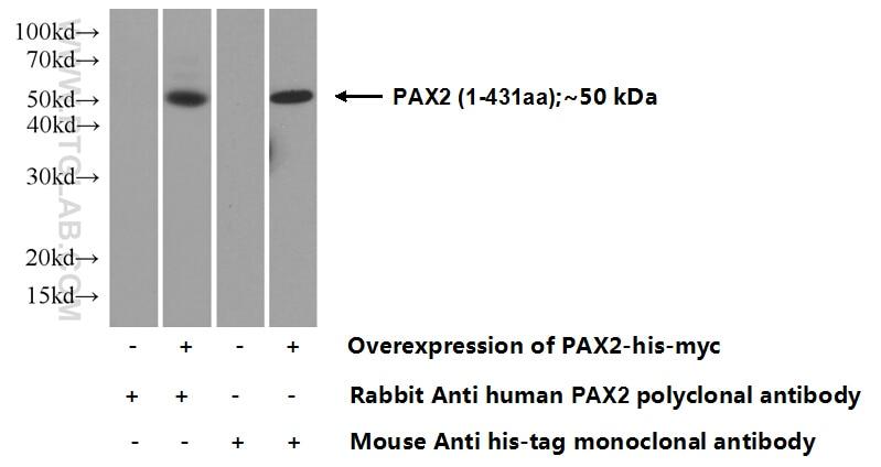 PAX2 Polyclonal antibody