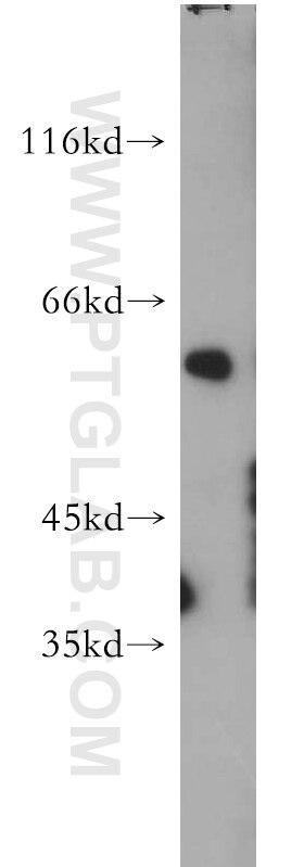 WB analysis of mouse skin using 21386-1-AP