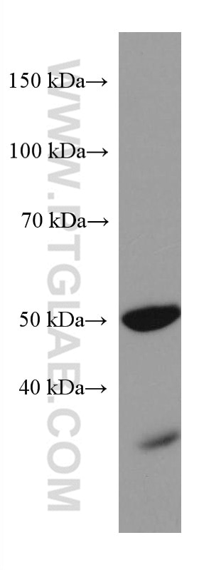 WB analysis of rat retina using 67529-1-Ig