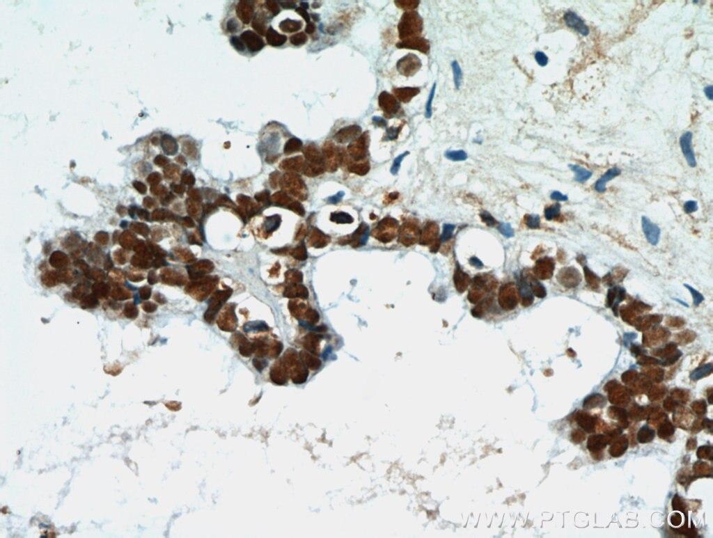 PAX8 Polyclonal antibody