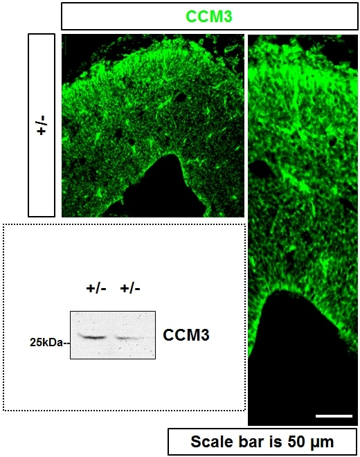 IF Staining of mouse brain using 10294-2-AP