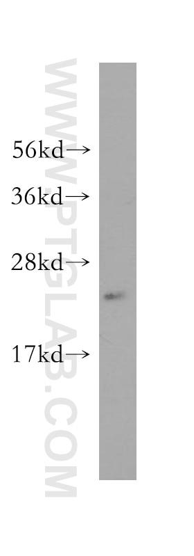 WB analysis of K-562 using 10294-2-AP