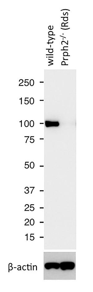 WB analysis of mouse eye tissue using 22063-1-AP