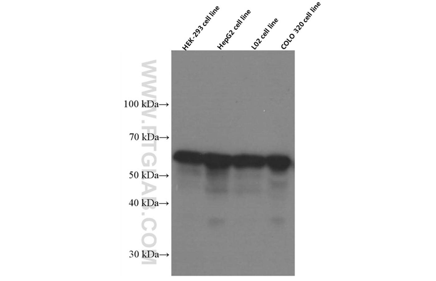 WB analysis using 66422-1-Ig
