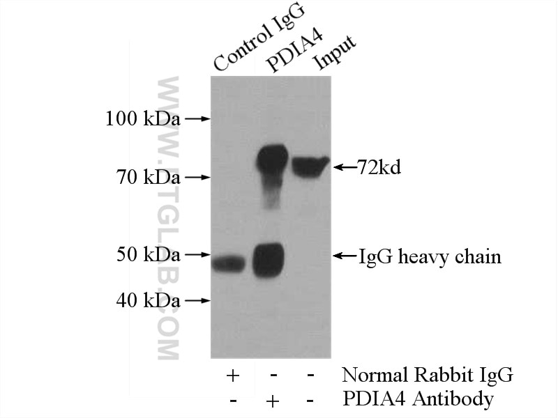 IP experiment of HeLa using 14712-1-AP