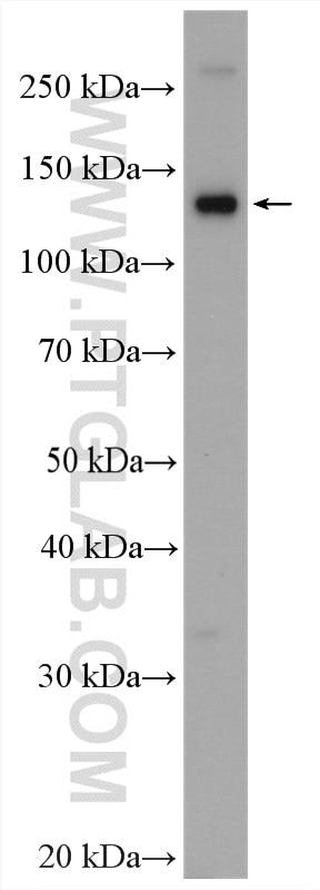 WB analysis of BxPC-3 using 20359-1-AP
