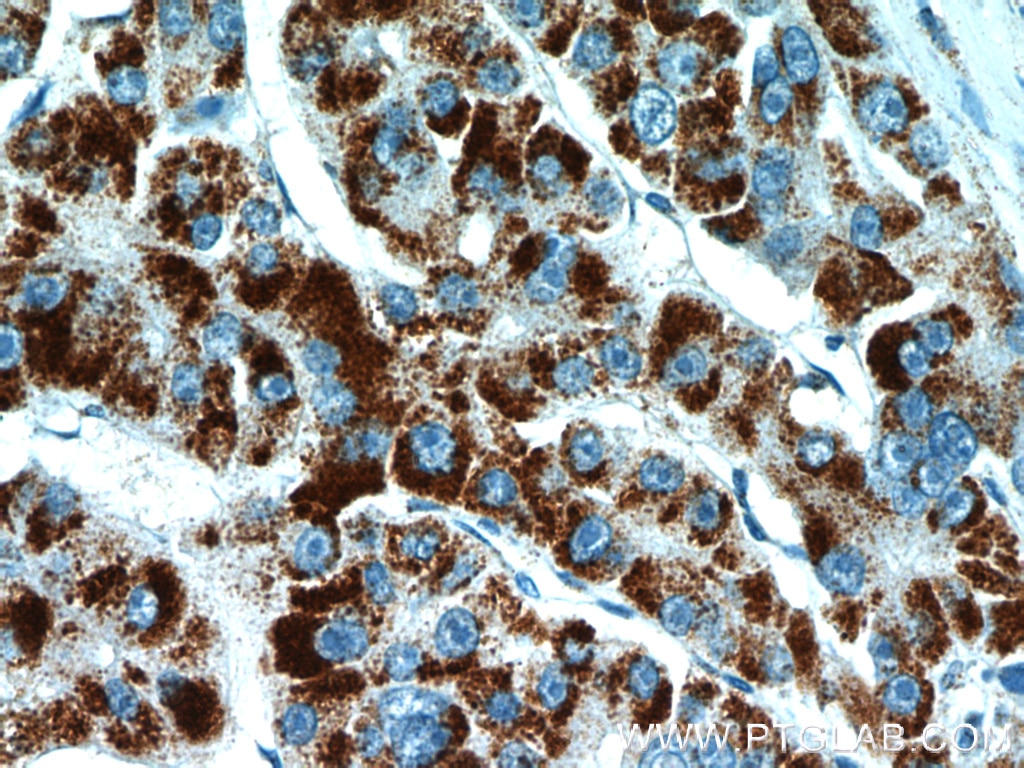 IHC staining of human liver cancer using 10594-1-AP