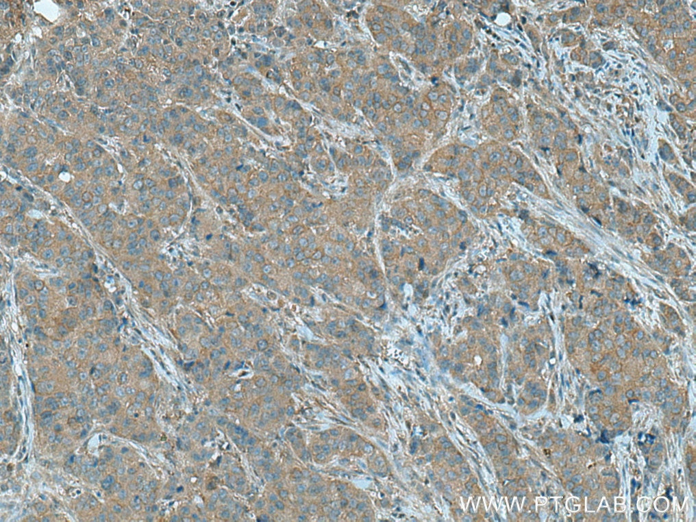 IHC staining of human breast cancer using 15550-1-AP