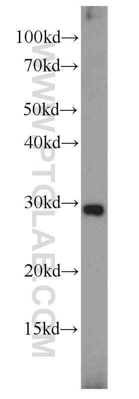 Placental Growth Factor Polyclonal antibody