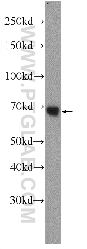human plasma tissue were subjected to SDS PAGE followed by western blot  with 23029-1-AP( PGLYRP2 Antibody) at dilution of 1:1000 incubated at room  ...