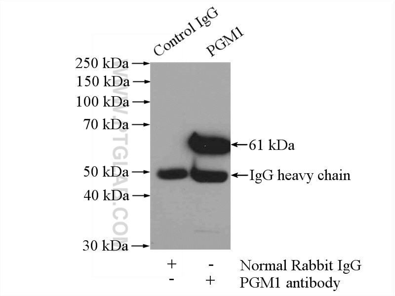 IP experiment of mouse skin using 15161-1-AP