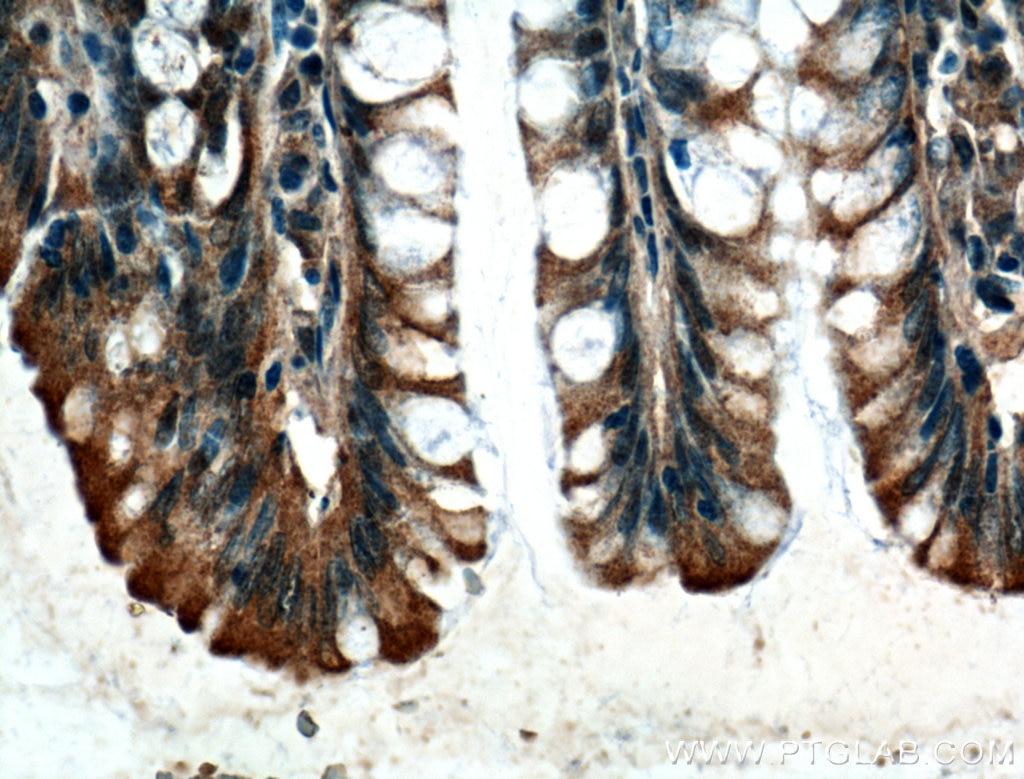 IHC staining of human colon using 66105-1-Ig