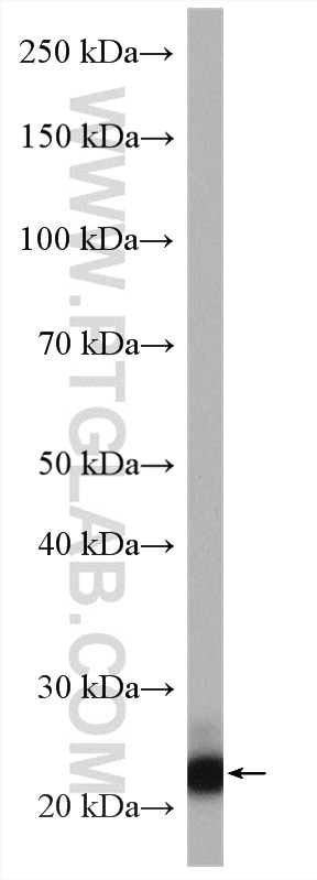 human placenta tissue were subjected to SDS PAGE followed by western blot  with 14661-1-AP (PHLDA2 antibody) at dilution of 1:800 incubated at room ...