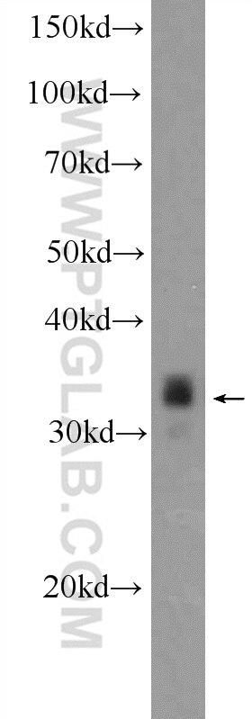 WB analysis of Neuro-2a using 25276-1-AP