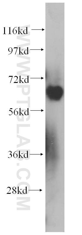 14242-1-AP;K-562 cell