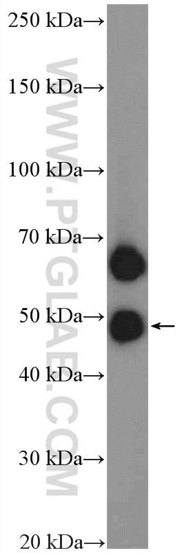 WB analysis of human placenta using 11818-1-AP
