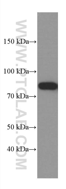 WB analysis of HeLa using 66421-1-Ig
