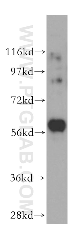 WB analysis of K-562 using 17580-1-AP