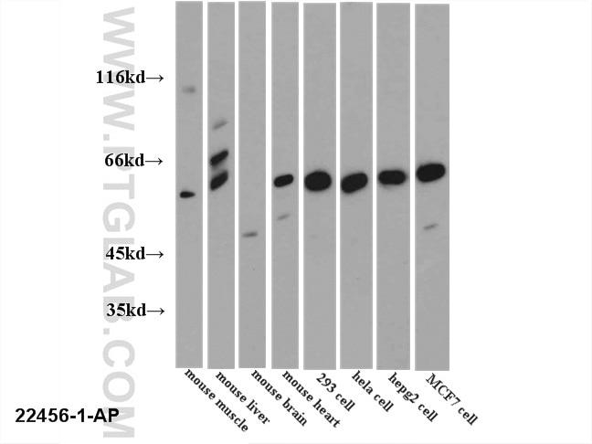 WB analysis of multi-cells/tissue using 22456-1-AP