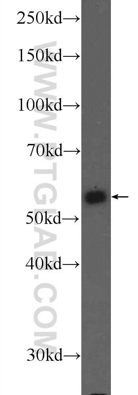 PKM Polyclonal antibody