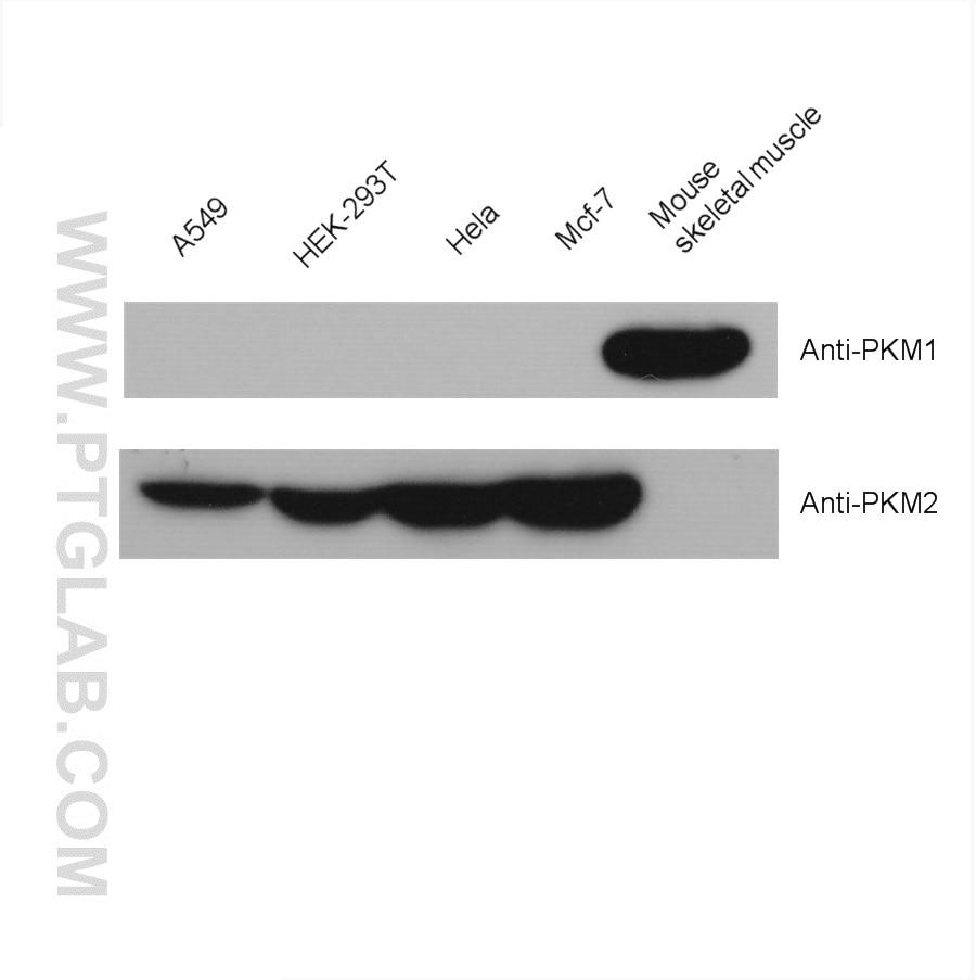 WB analysis using 15822-1-AP
