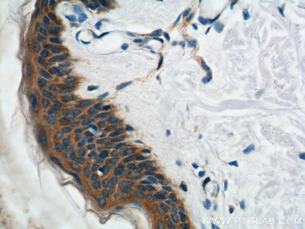 IHC staining of human skin using 18338-1-AP