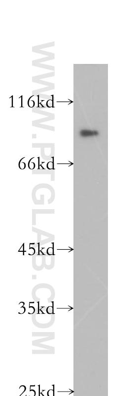 WB analysis of K-562 using 18338-1-AP