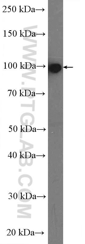 WB analysis of human blood using 17462-1-AP