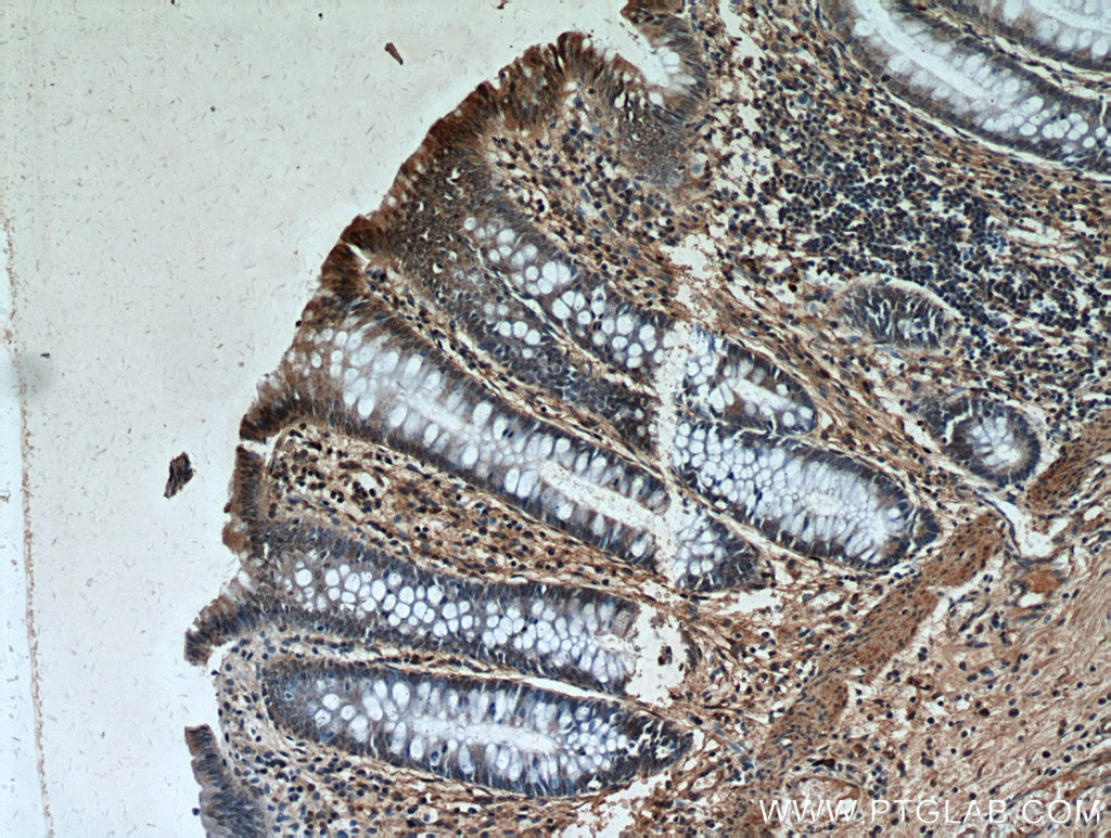 IHC staining of human colon using 19553-1-AP