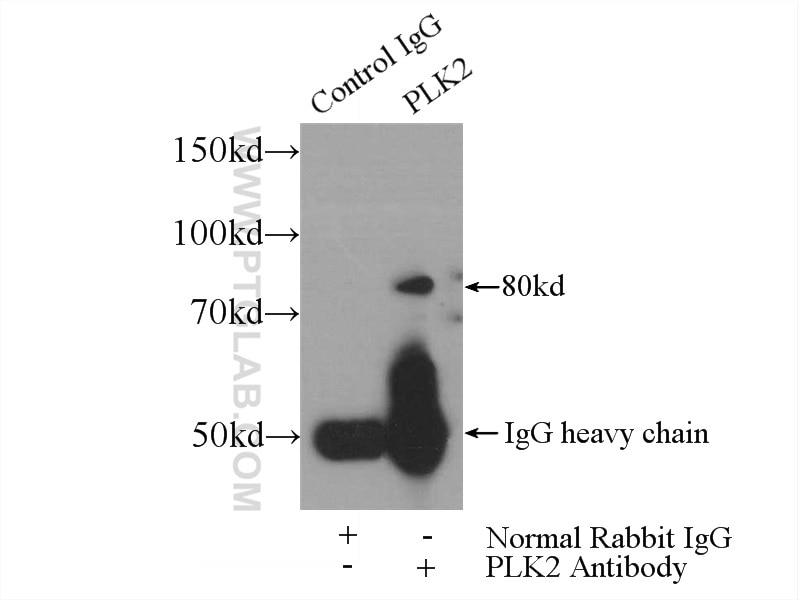 IP experiment of HeLa using 15956-1-AP