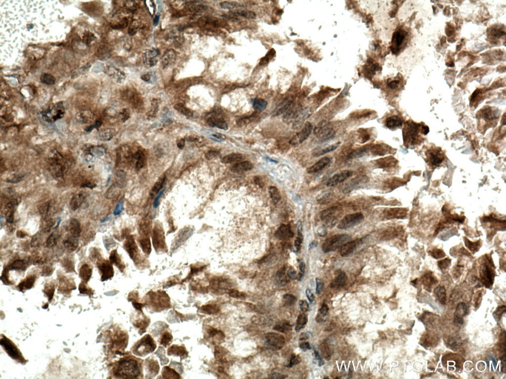 IHC staining of human lung cancer using 28750-1-AP