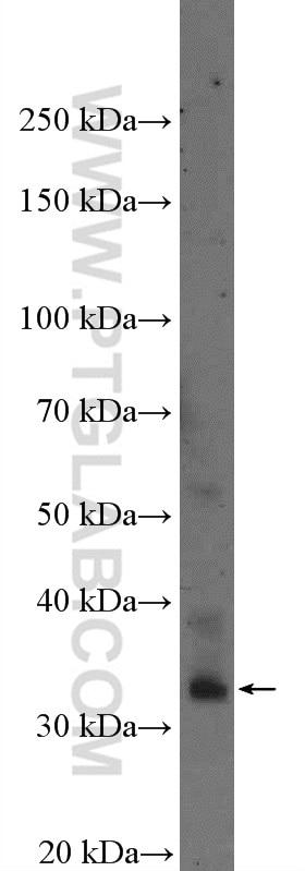 WB analysis of L02 using 16521-1-AP