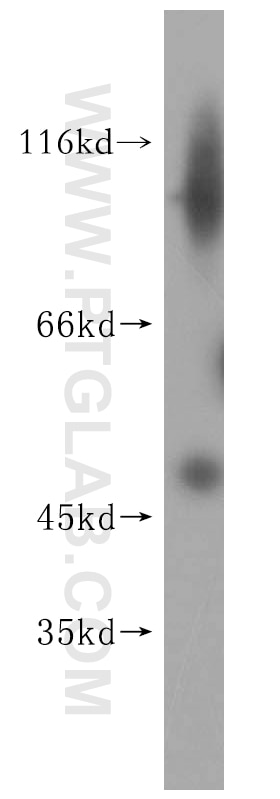 HEK-293 cells were subjected to SDS PAGE followed by western blot with 16965-1-AP(PNMAL1  antibody) at dilution of 1:500 incubated at room temperature for ...