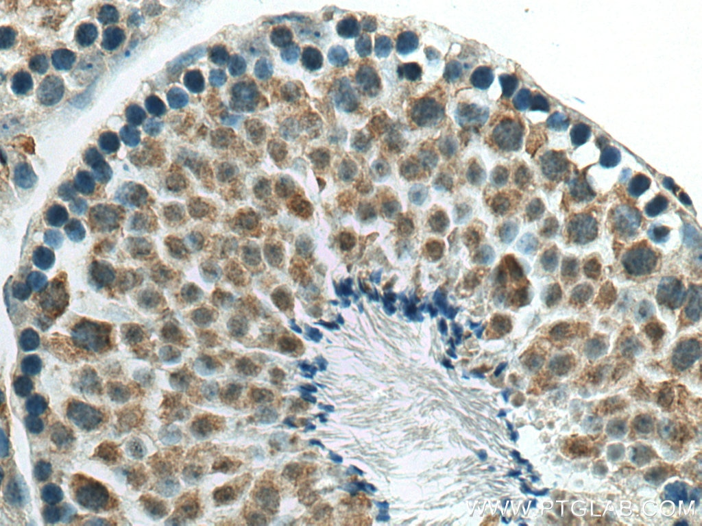 IHC staining of mouse testis using 10321-1-AP