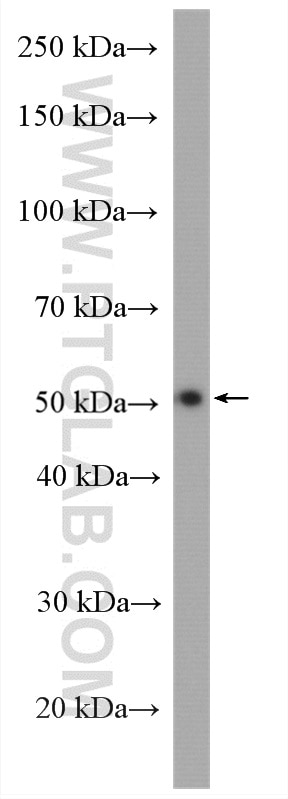 WB analysis of human placenta using 28053-1-AP