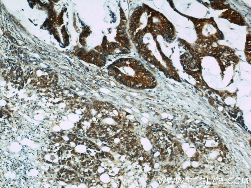 IHC staining of human colon cancer using 10720-1-AP