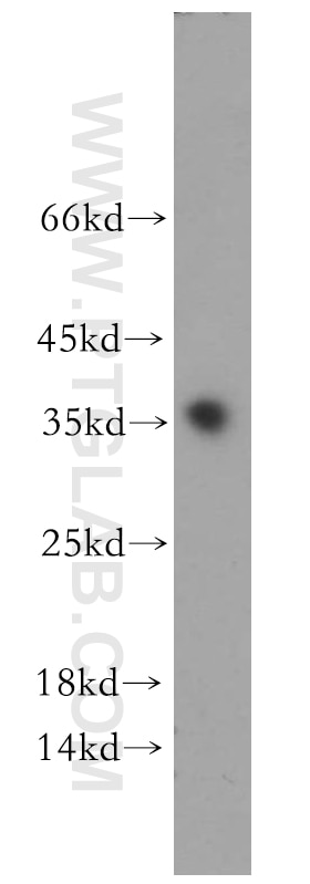 WB analysis of human testis using 11969-1-AP