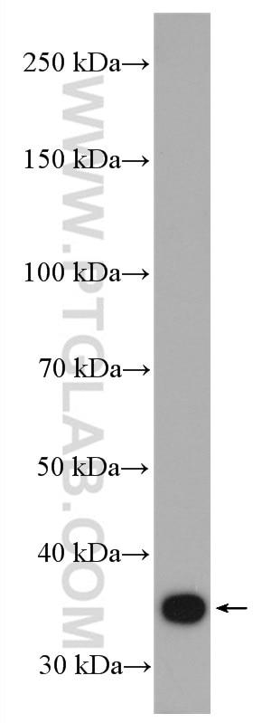 WB analysis of Jurkat using 13482-1-AP