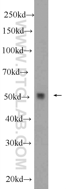 WB analysis of mouse brain using 24877-1-AP