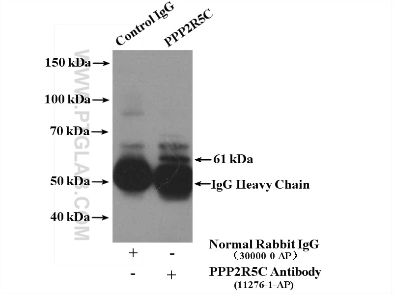 IP experiment of mouse brain using 11276-1-AP