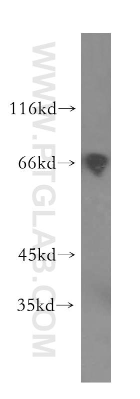 WB analysis of HEK-293 using 15617-1-AP